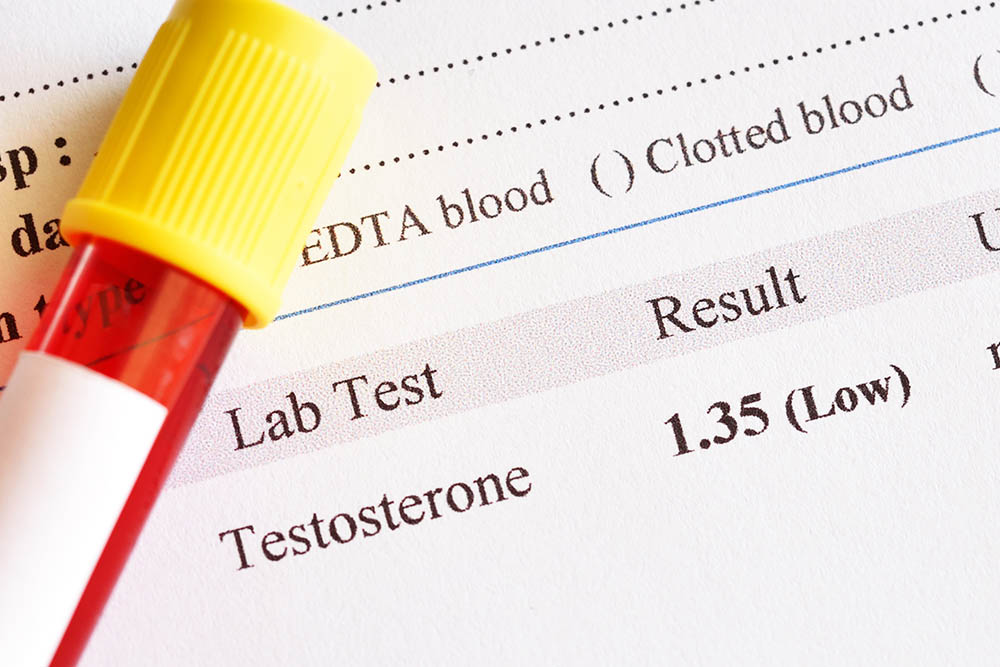 Testosterone deficiency lab test