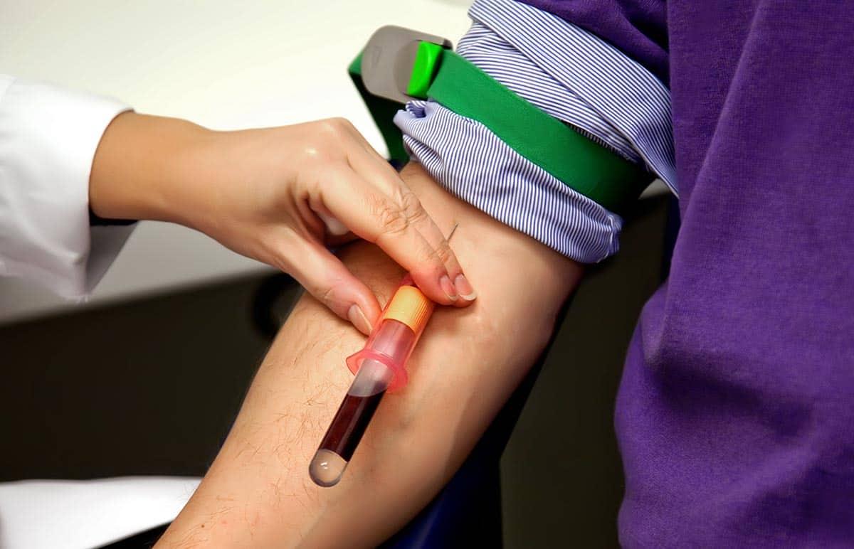 Blood test to determine testosterone levels